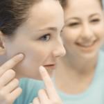 Mitos y verdades sobre cómo evitar el acné