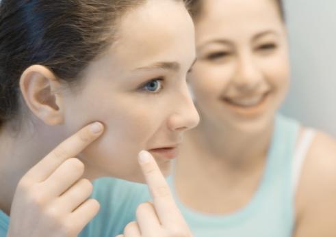 evitar el acné