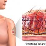 Trucos para eliminar los hematomas
