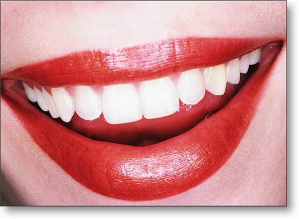 Consejos para lucir dientes blancos.